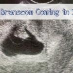 BabyBranscom